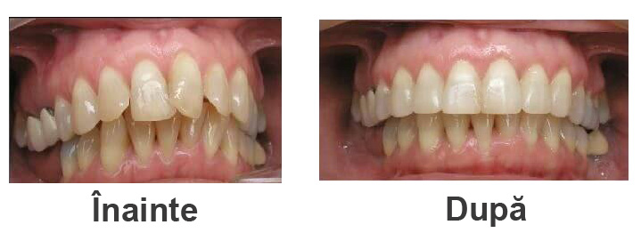 aparat-dentar-exemplu