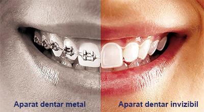 aparate-dentare