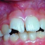 estetica-dentara1