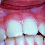 estetica-dentara2