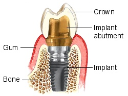 implant-dentar1