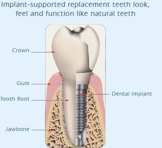 implant-dentar2